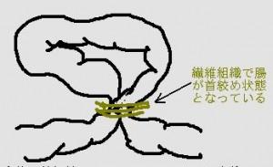 絞扼性イレウスの原因と症状を紹介!オダギリジョーと香椎由宇の次男(1歳)が死去