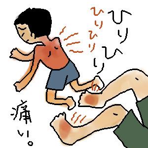 日焼け後のケア!子どもにプロペトが安全・安心でよく効く!