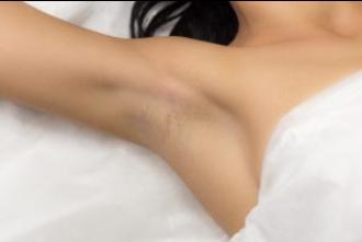脇の黒ずみが妊娠中に起こるのはなぜ?対策方法